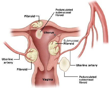 Drawing showing different types of uterine fibroids